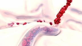 The CRNA and postpartum hemorrhage