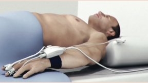 Beach Chair Position in a Patient With Subclavian Steal Syndrome and Axillary Lymph Node Dissection: A Case Report