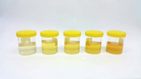Intraoperative Change in Urine Color: Be Cautious for a Clinical Entity!