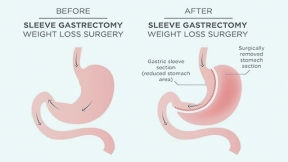 Prevention of Nausea and Vomiting After Laparoscopic Sleeve Gastrectomy: Are We Doing Enough?